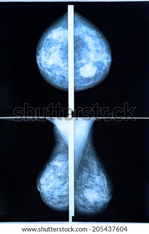 mammography breast scan X-ray image - stock photo