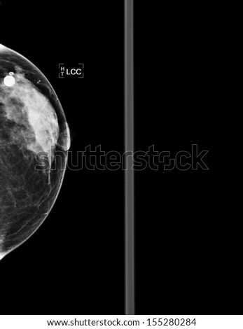 mammography  breast scan X-ray picture - stock photo
