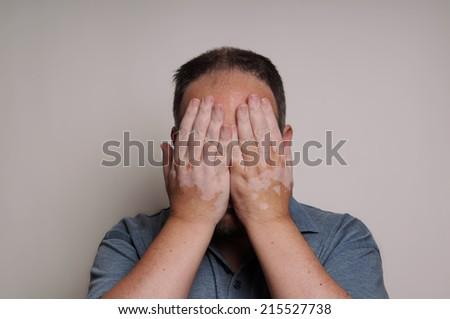 man affected by Vitiligo skin condition hiding his face - stock photo