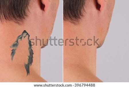 Man before and after laser tattoo removal treatment - stock photo