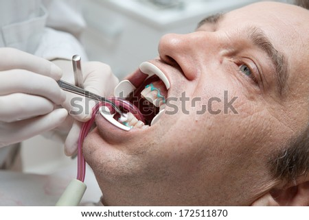Man during teeth whitening process at the dentist office - stock photo