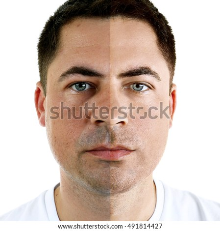 Man face before and after cosmetic procedure. Plastic surgery concept.