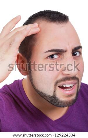 Man gets hair loss - stock photo