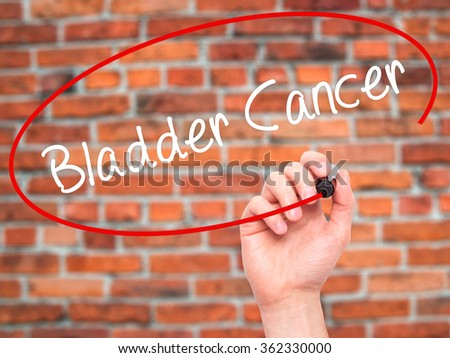Man Hand writing Bladder Cancer with black marker on visual screen. Isolated on background. Business, technology, internet concept. Stock Photo - stock photo