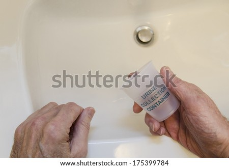 man leaning on sink with urine collection container - stock photo