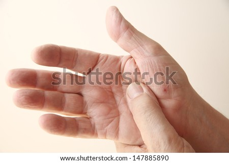 man's hand with new skin on a cut