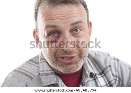 Man with Black Eye, Shiner. Man's face after the fight and assault. Middle-aged Caucasian male Emotional Portrait with a Real Bruise after the fight. Bully and Teaser threatens. HiddenViolence