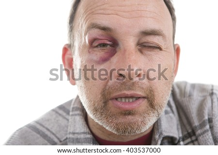 Man with Black Eye, Shiner. Man's face after the fight and assault. Middle-aged Caucasian male Emotional Portrait with a Real Bruise after the fight. Bully and Teaser. HiddenViolence