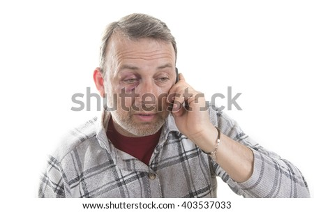 Man with Black Eye speaks by phone, Shiner. Man's face after the fight and assault. Middle-aged Caucasian male Emotional Portrait with a Real Bruise after the fight. HiddenViolence.