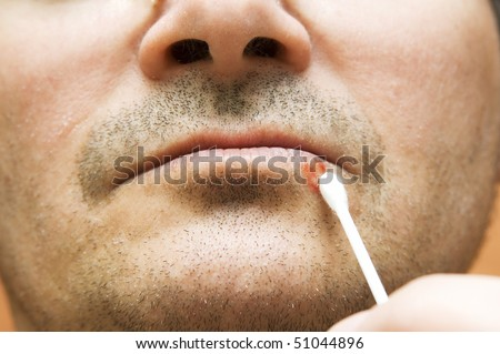 Man with  cold sore on his lips - stock photo