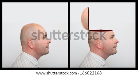 Man with empty head. Mental health concept.  - stock photo