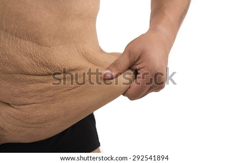 man with fat belly and stretch marks - stock photo