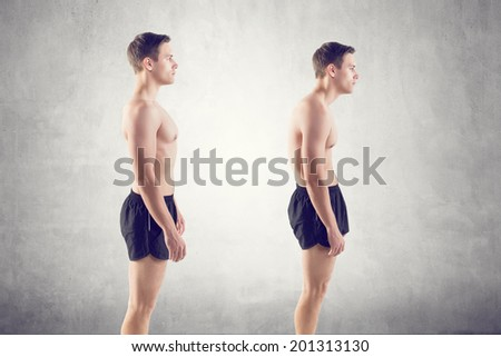 Man with impaired posture position defect scoliosis and ideal bearing - stock photo