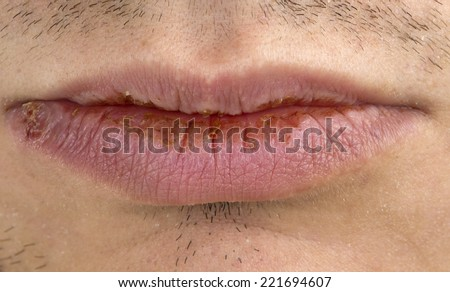 Manifestation of herpes on young man lips