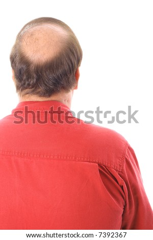 mans bald head - stock photo