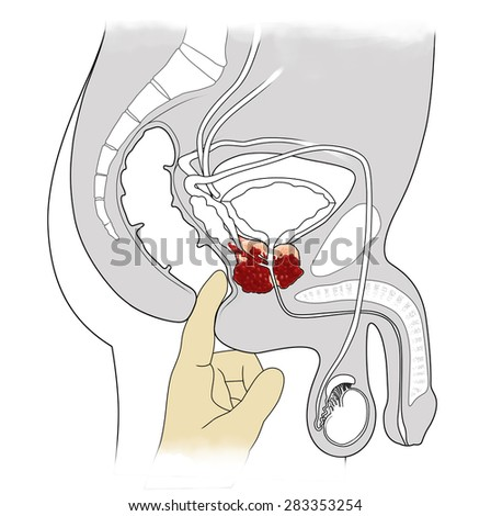 manual examination and cross-sectional view of prostate cancer - stock photo