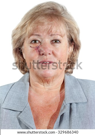 Mature woman with stitched cheek one week after Mohs surgery for Basal Cell Carcinoma - stock photo