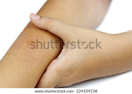 Measles on arm isolated on white background - stock photo