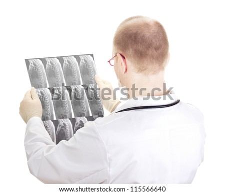 Medical doctor with radiograph - stock photo