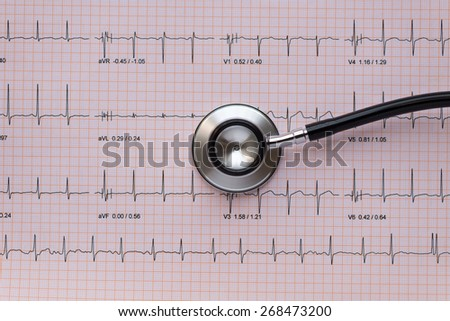 medical equipement black Stethscope overlying an ECG or EKG - stock photo