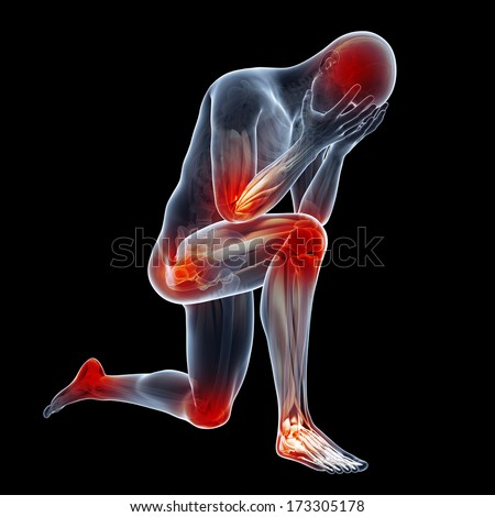 medical illustration showing inflamed, painful joints - stock photo