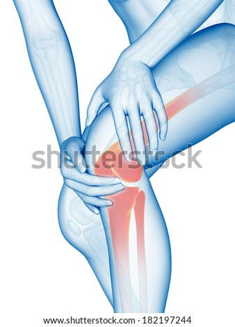 medical illustration - woman having pain in the knee - stock photo