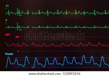 A Line Arterial Monitoring : Medical monitor green lines abnormal ecg stock photo