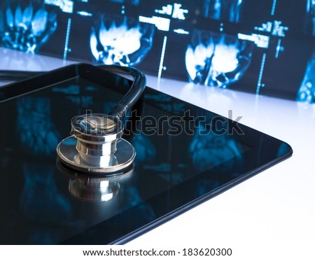 medical stethoscope on modern digital tablet in laboratory on x-ray images background. Concept of health care with new technology - stock photo