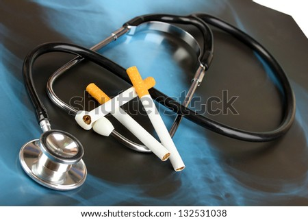 Medical stethoscope on x-ray picture with cigarettes close up - stock photo