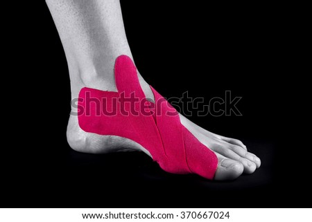 medical taping for correction of hallux valgus  - stock photo