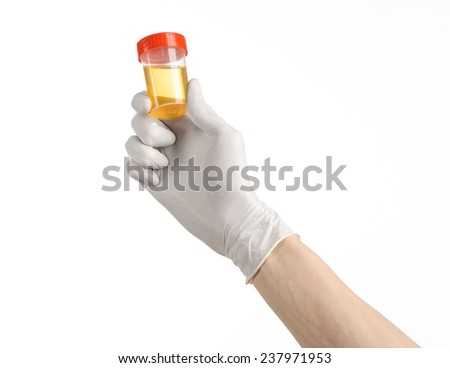 Medical theme: doctor's hand in white gloves holding a transparent container with the analysis of urine on a white background