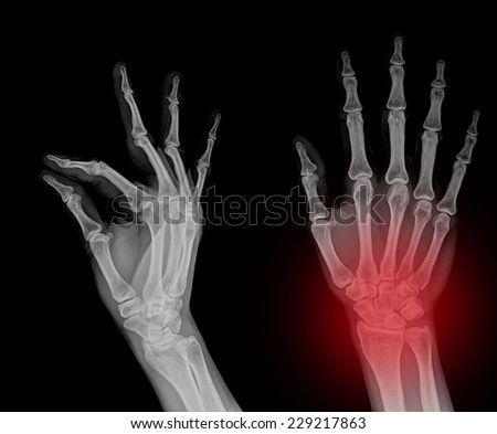 Medical X-Ray imaging of hand