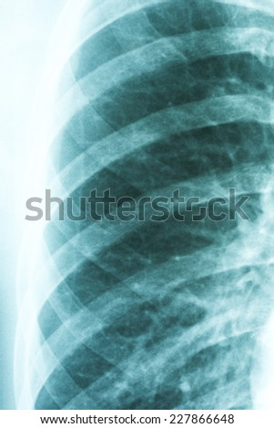 Medical X-Ray Of Pneumonia Infected Lung - stock photo