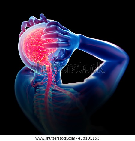 medically accurate 3d illustration of headache/ migraine
