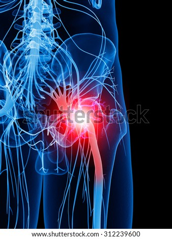 Medically Accurate Illustration Painful Sciatic Nerve Stock ...