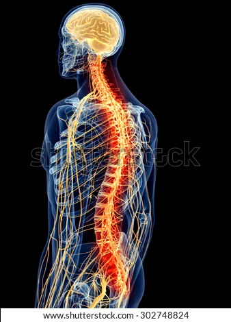 medically accurate illustration - painful spine - stock photo