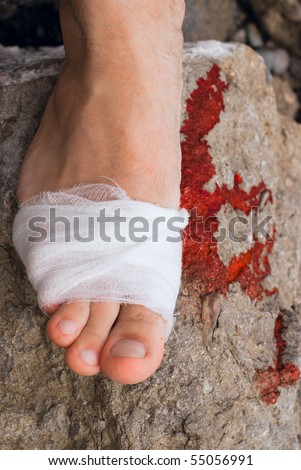 Medicine bandage on human injury foot after accident and blood on rock