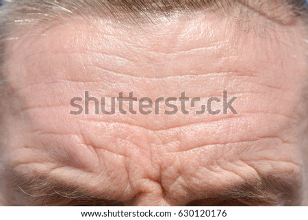 Men's forehead wrinkles and grey eyebrows