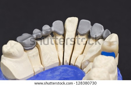 metal framework of a dental bridge on  a cast model - stock photo