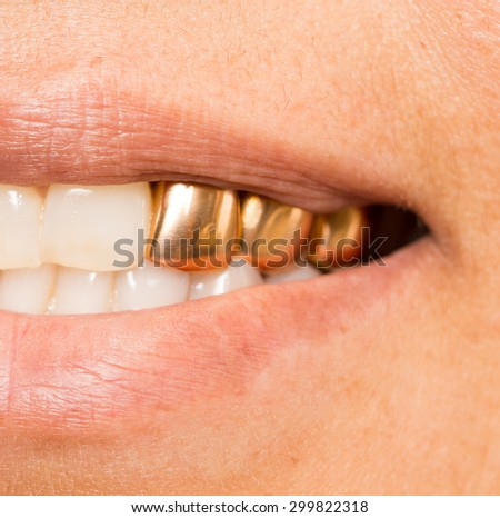 metal teeth in the mouth - stock photo