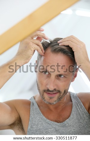 Middle-aged man applying treatment for hair loss