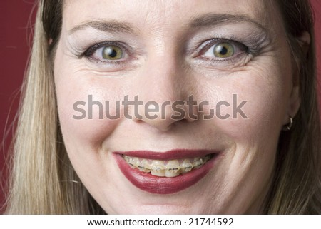 Middle aged woman with braces
