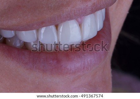 dental veneer vector