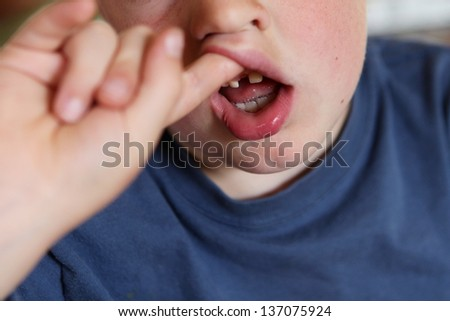 Missing front tooth - stock photo