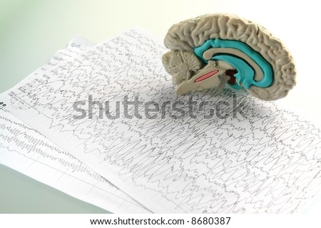 Mock-up of brain on diagram background and glass background - stock photo