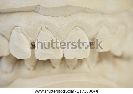 Model with dentures of teeth in dental laboratory - stock photo