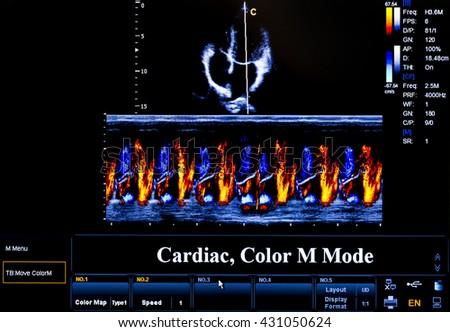 Modern echocardiography (ultrasound) machine monitor. Colour image. New hospitl equipment. Cardiac, Colour M Mode. - stock photo