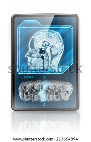 Modern tablet showing MRI images - stock photo