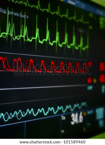 monitor in the ICU. The waves of blood pressure, blood oxygen saturation, ECG - stock photo