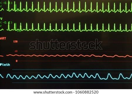 A Line Arterial Monitoring : Perioprative monitoring